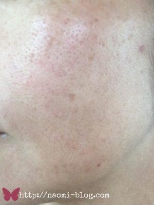 40代女性の肌