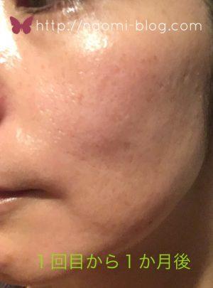 ケミカルピーリング1回目から1ヶ月後の肌