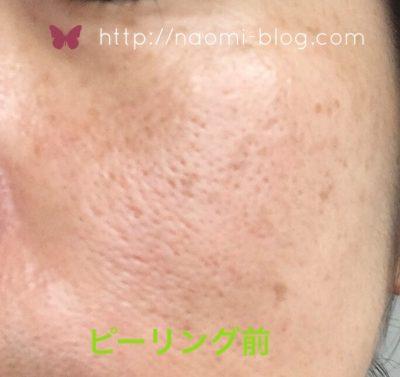 ケミカルピーリング前の肌